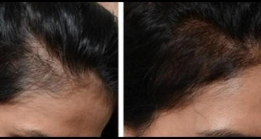 Aktivering af egne stamceller hår/bryn