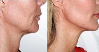 HIFU hals eller kinder