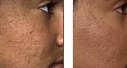 HIFU skinbooster mod acne ar
