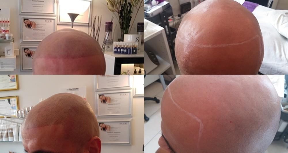 Hårpigmentering