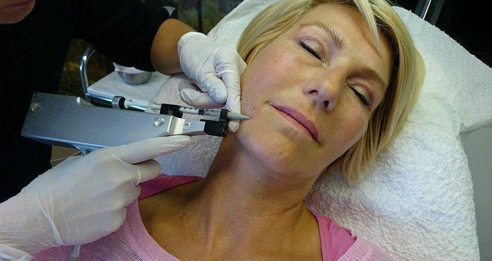 Mesoterapi øvre ansigt