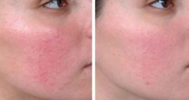 pHformula CR Redness og Rosacea
