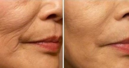 Skinpen Nano ansigtsbehandling