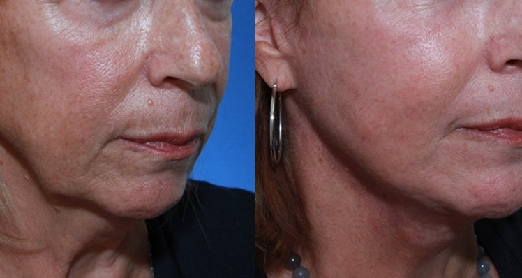 Skinpen Rejuvenation