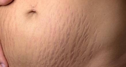 Strækmærker Lår eller Mave